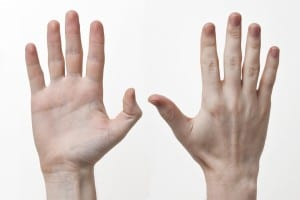 Your hand size will determine how easy or hard it is to palm a basketball